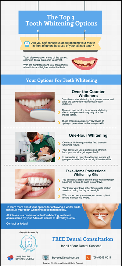 The Top 3 Tooth Whitening Options